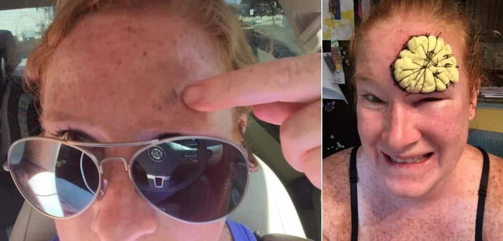 Ela acreditava que um tipo agressivo de câncer de pele era apenas uma pinta
