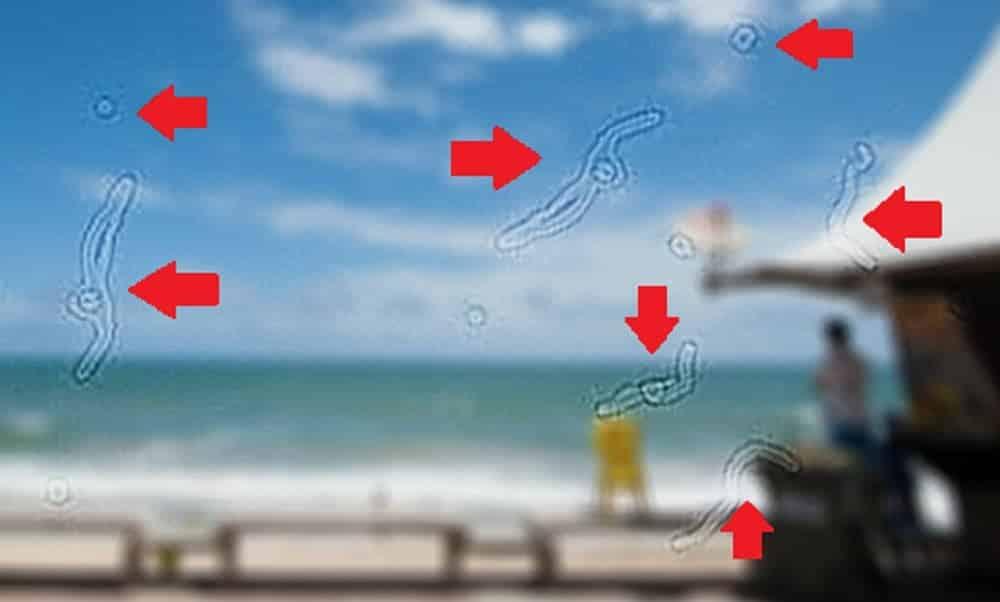 Manchas flutuantes e pontos pretos na visão podem ser sinais de alerta