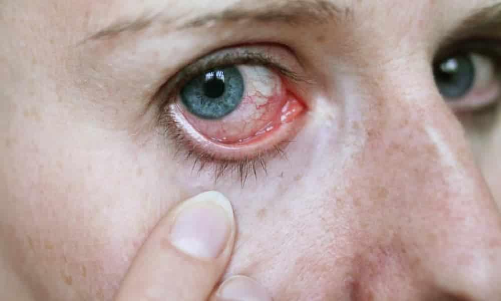 10 formas de combater os olhos secos quando a umidade estiver baixa