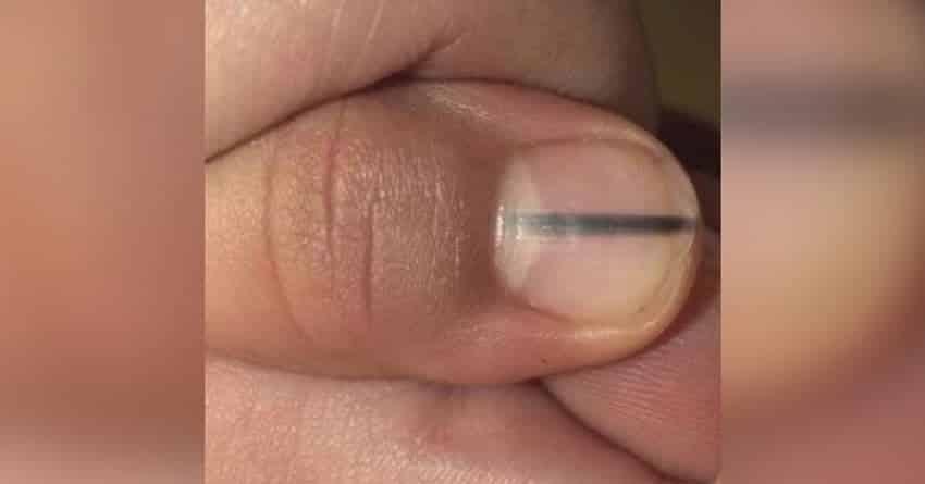 Linha preta na unha pode ser sinal de uma doença grave