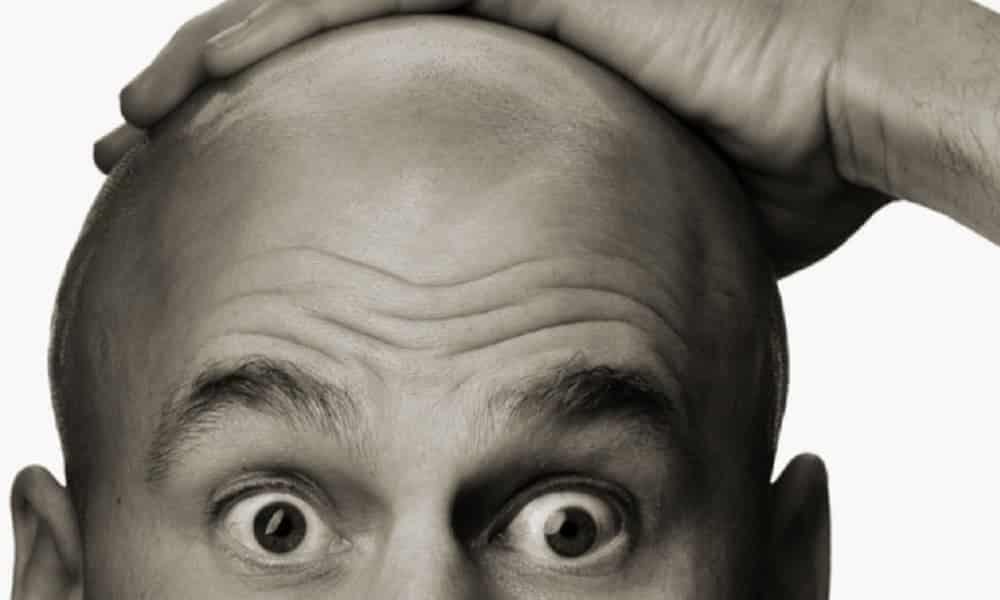 Como não ficar careca: saiba como evitar a queda do seu cabelo