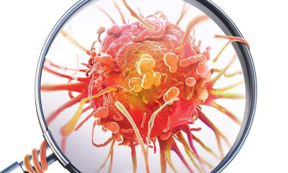 Cientistas descobrem qual a principal causa do câncer e como preveni-la