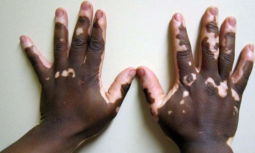 O que é vitiligo? Entenda a doença e como ela surge
