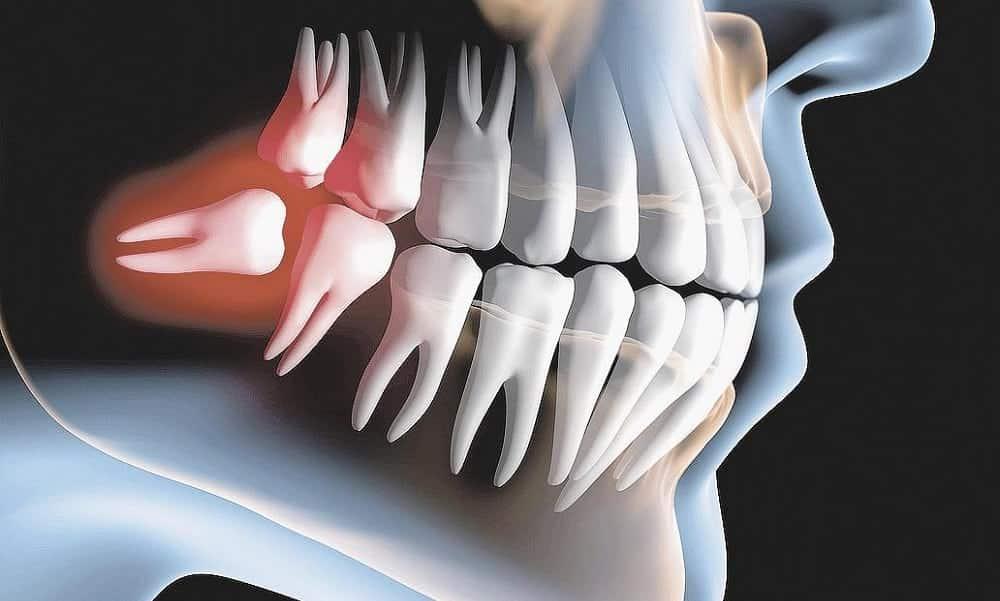 O que são os dentes sisos? Todo mundo precisa extraí-los?