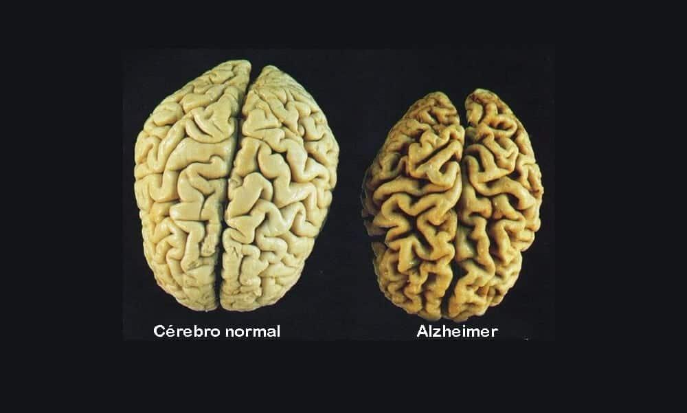 11 comportamentos que podem ser sintomas de Alzheimer