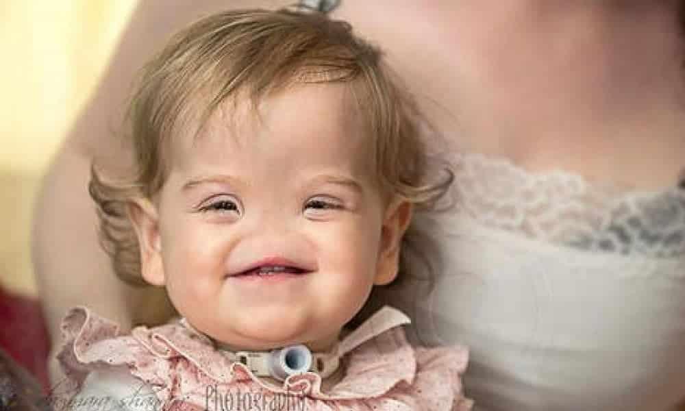 6 crianças especiais que sofrem de condições raríssimas