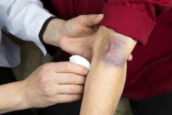 Fotografia de um hematoma em foco para ilustração do item