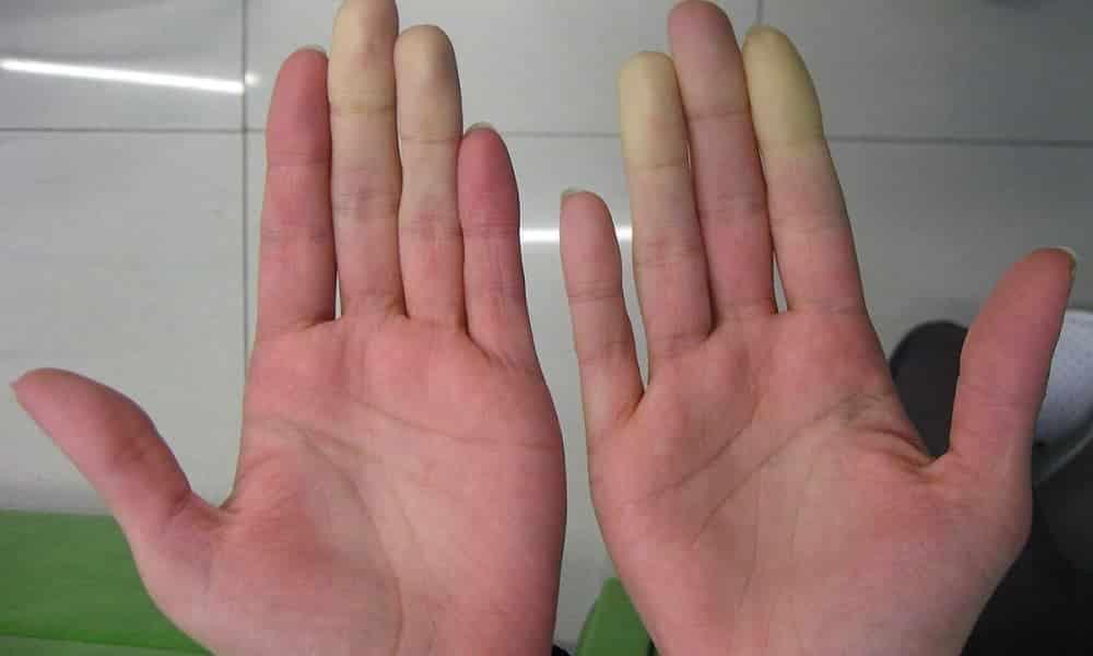 Mãos frias o tempo todo? Descubra o que isso pode significar