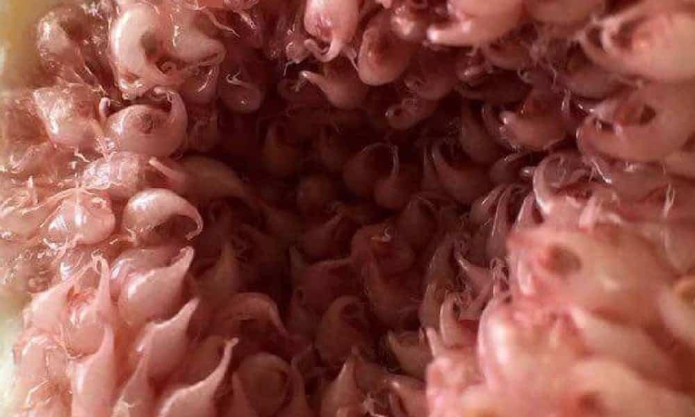 16 fotos em zoom que provam o quanto o corpo humano pode ser nojento