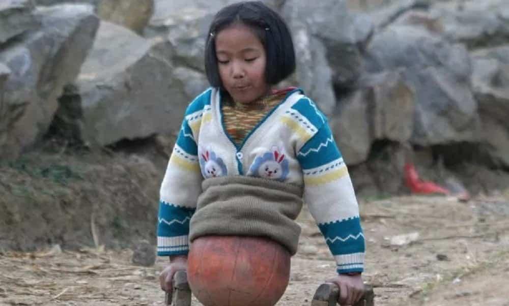 Menina que usava bola de basquete como pernas cresceu e está assim