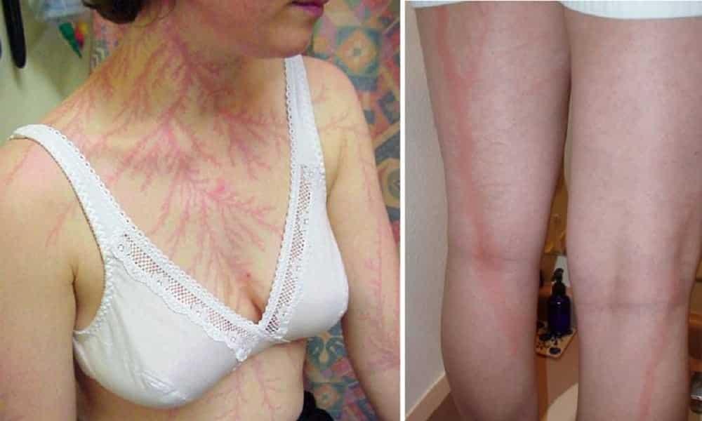 O que acontece com uma pessoa atingida por um raio
