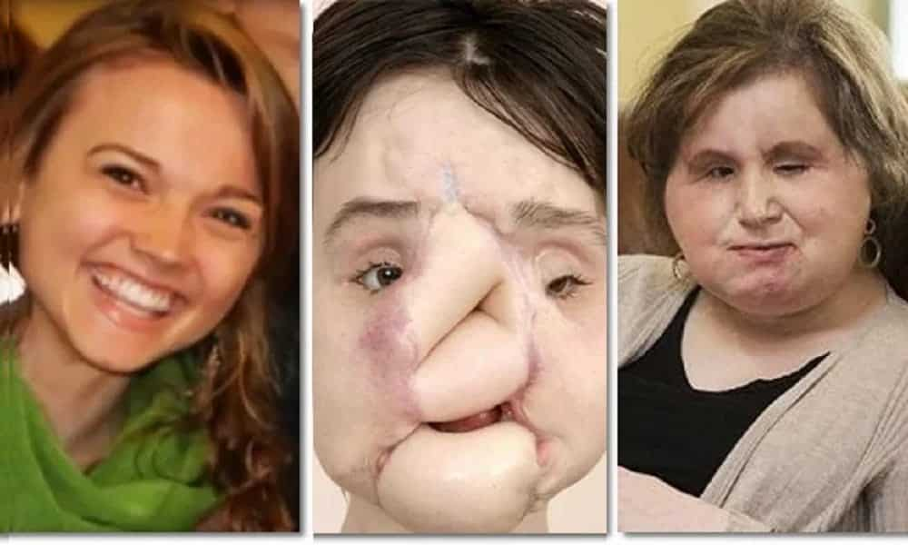 Transplante de rosto: essa foi a mulher mais jovem a fazer a cirurgia