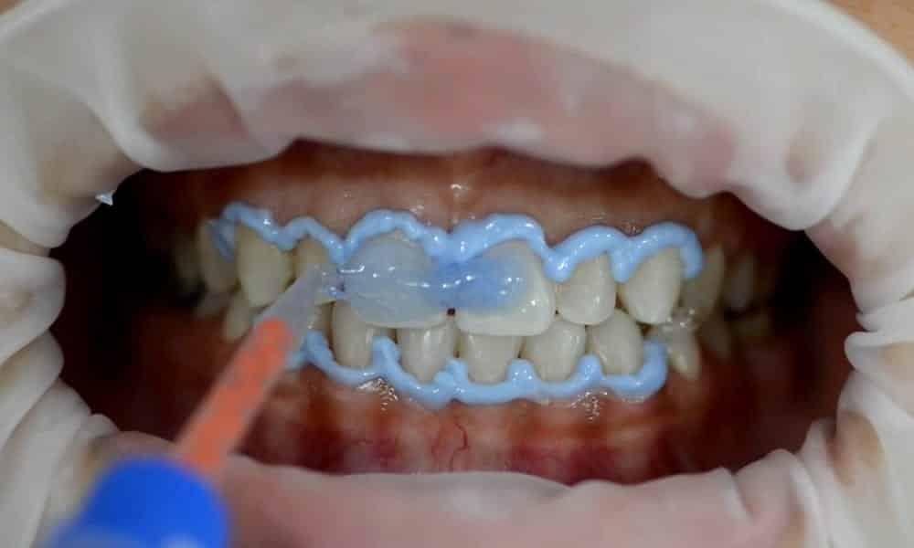 Dia do dentista: 15 coisas que o dentista faz e você nem imagina