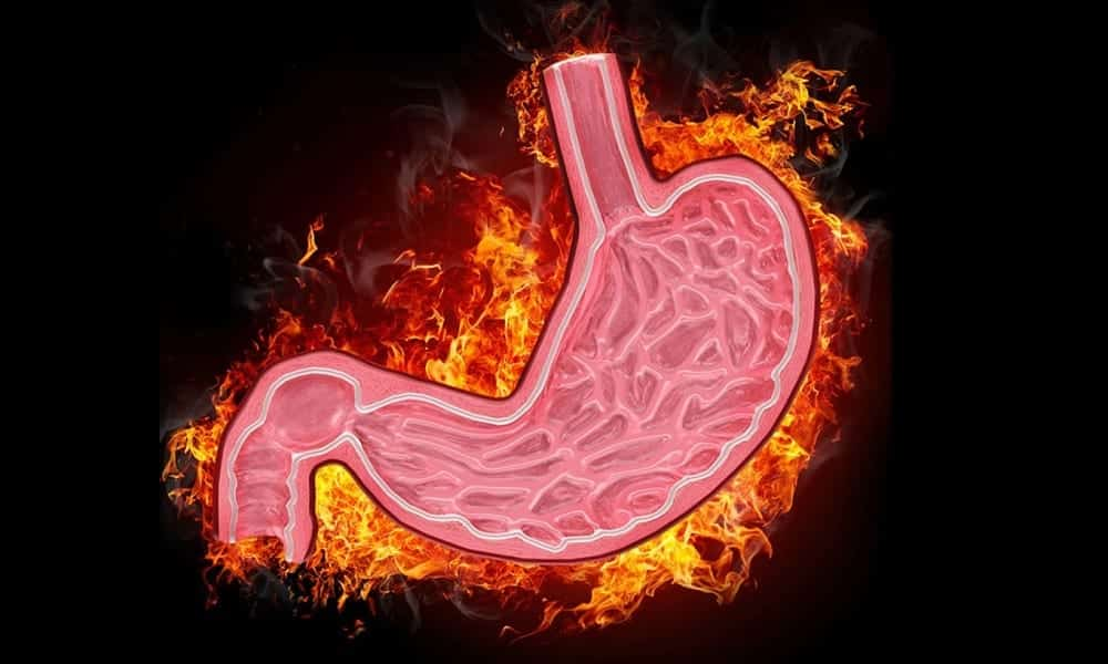 Gastrite: conheça os tipos da doença e seus sintomas