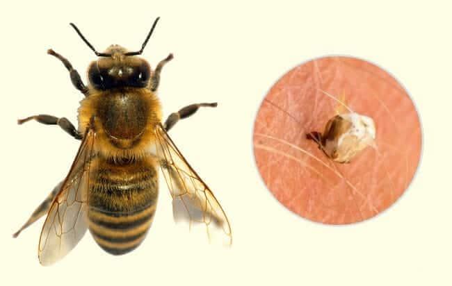 7 tipos de picadas de inseto mais perigosas do mundo
