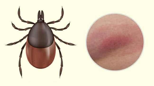 7 tipos de picadas de inseto que você precisa aprender a diferenciar