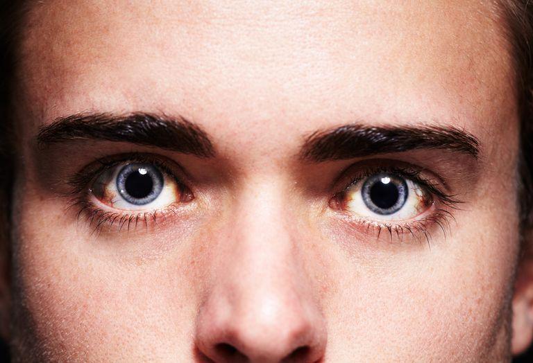 7 possíveis causas e significados para uma pupila dilatada