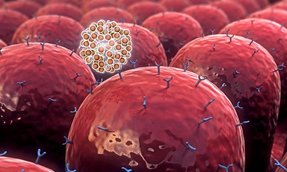 Doenças autoimunes, o que são, causas, sintomas e tratamentos