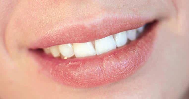 O que é boca seca, como saber se você tem e qual o tratamento