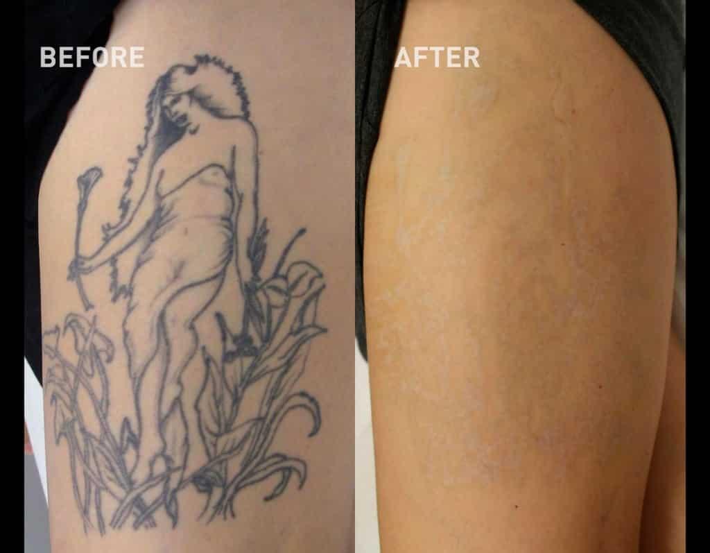 Remoção De Tatuagem Como é Feita Quanto Custa Dói