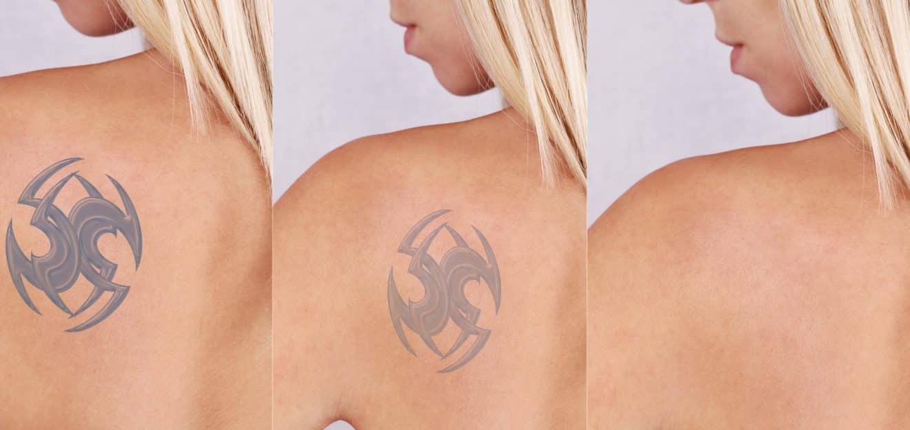 Entenda mais sobre o processo de remoção de tatuagem