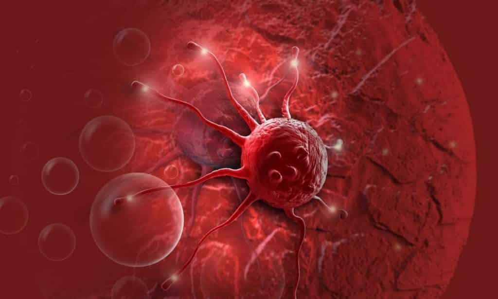 Sintomas de câncer, 12 principais sinais que costumam ser ignorados