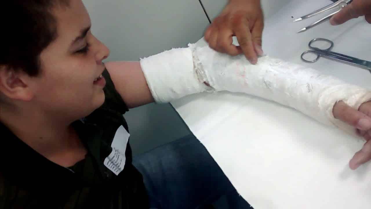 4 dicas de como coçar a pele dentro do gesso e acabar com a agonia
