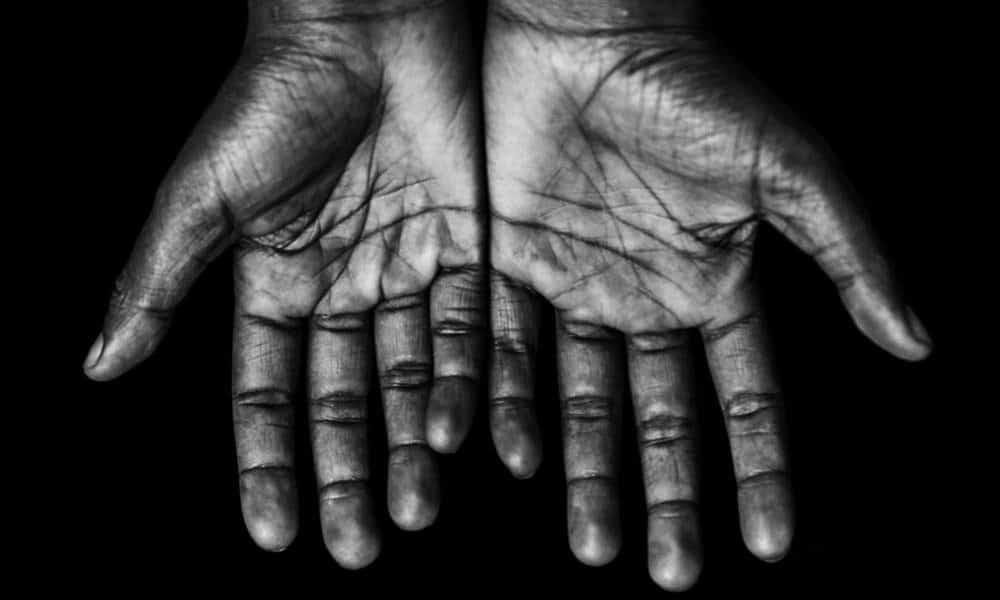 Mãos, 7 coisas que as suas mãos podem revelar sobre a sua saúde