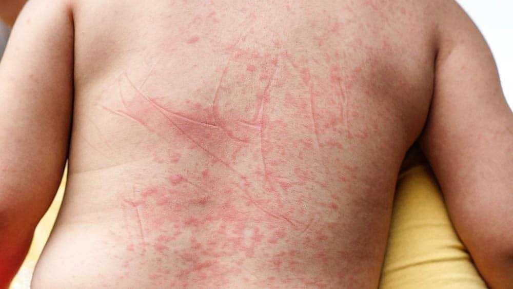 Conheça quais são os sintomas da dengue saiba como tratar