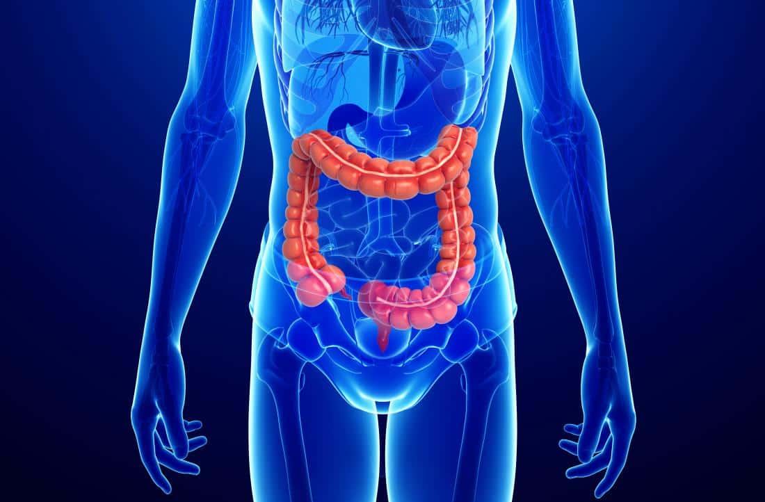 O que é, quais os sintomas e os tratamentos da Doença de Crohn