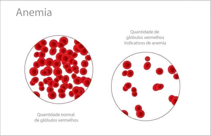 Você conhece quais são os sintomas de anemia?