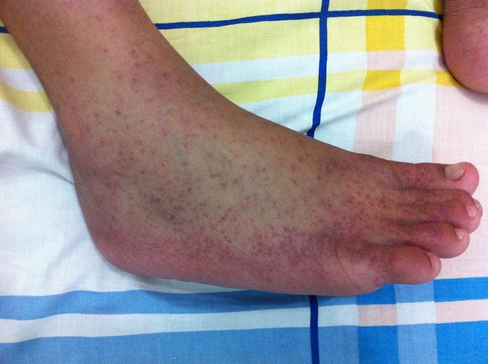 Chikungunya, quais são as causas, os sintomas e o tratamento da doença