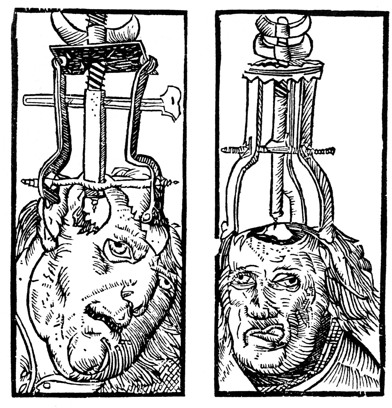 Conheça agora a mutilação mental, ou melhor a lobotomia