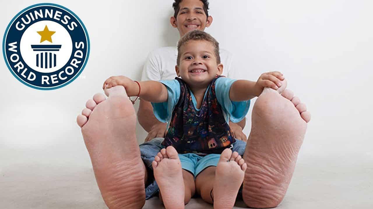 Conheça agora o homem com o maior pé do mundo