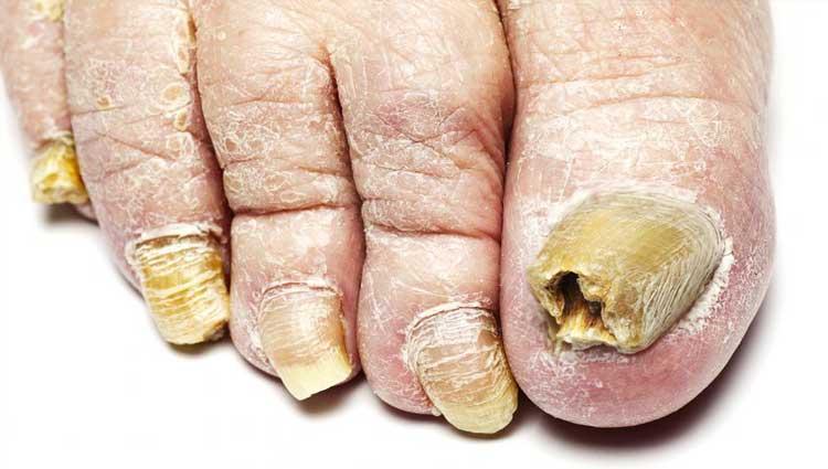Micose, quais são os tipos, sintomas, causas e tratamentos para a doença