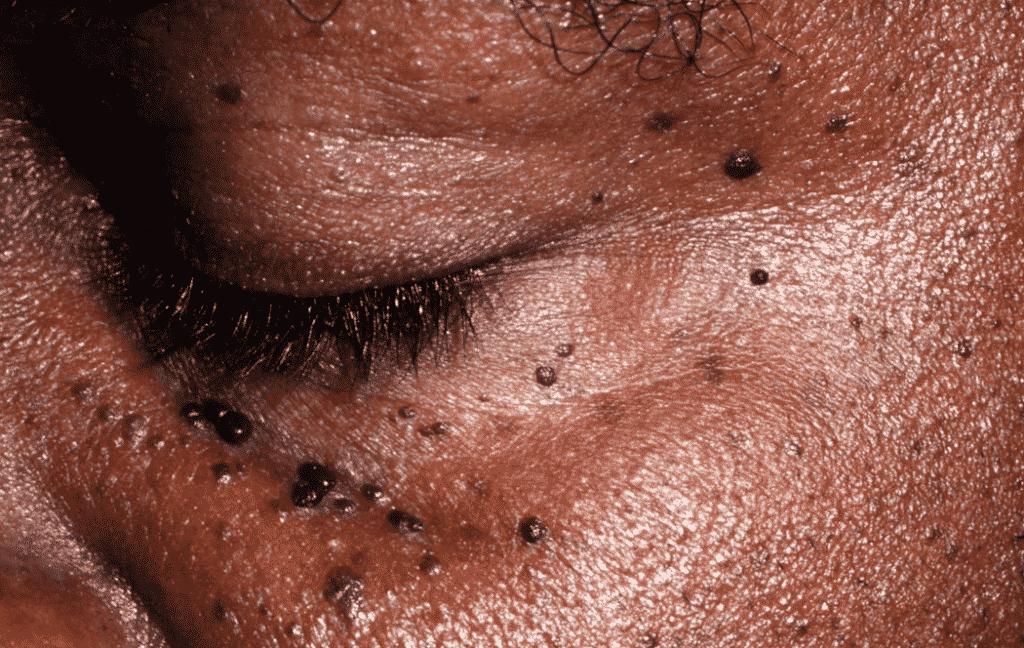 Dermatose – o que é, principais tipos, sintomas, características e Dermatite