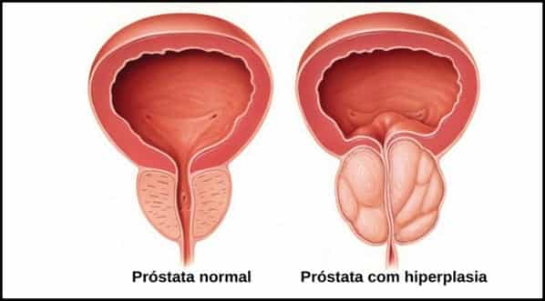 Aumento da próstata, o que isso pode indicar para o homem