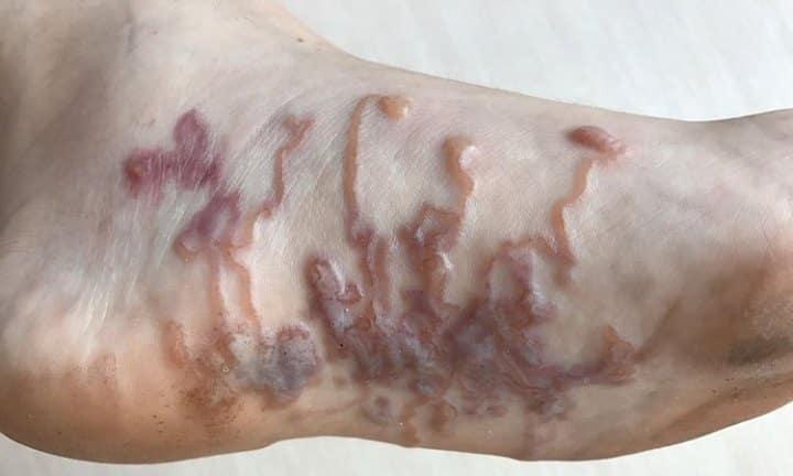 Bicho geográfico, quais são as causa, sintomas e tratamento
