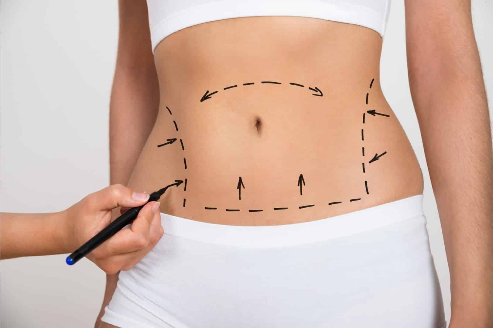 Descubra agora as 6 cirurgias mais realizadas no Brasil