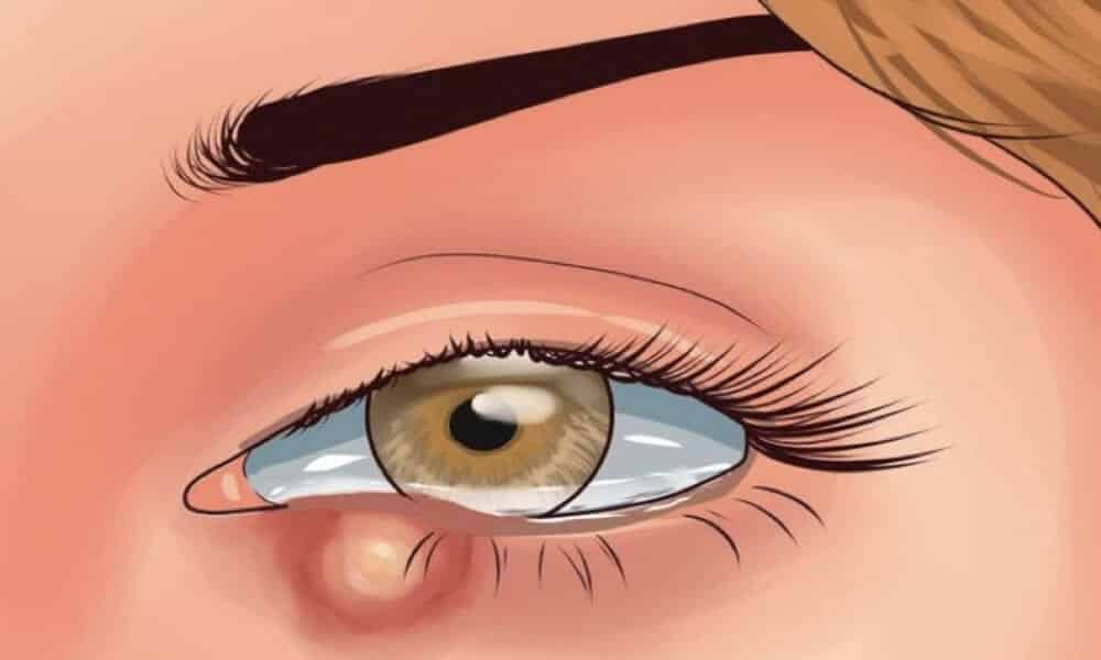 Olhos vermelhos - 10 causas mais comuns do problema