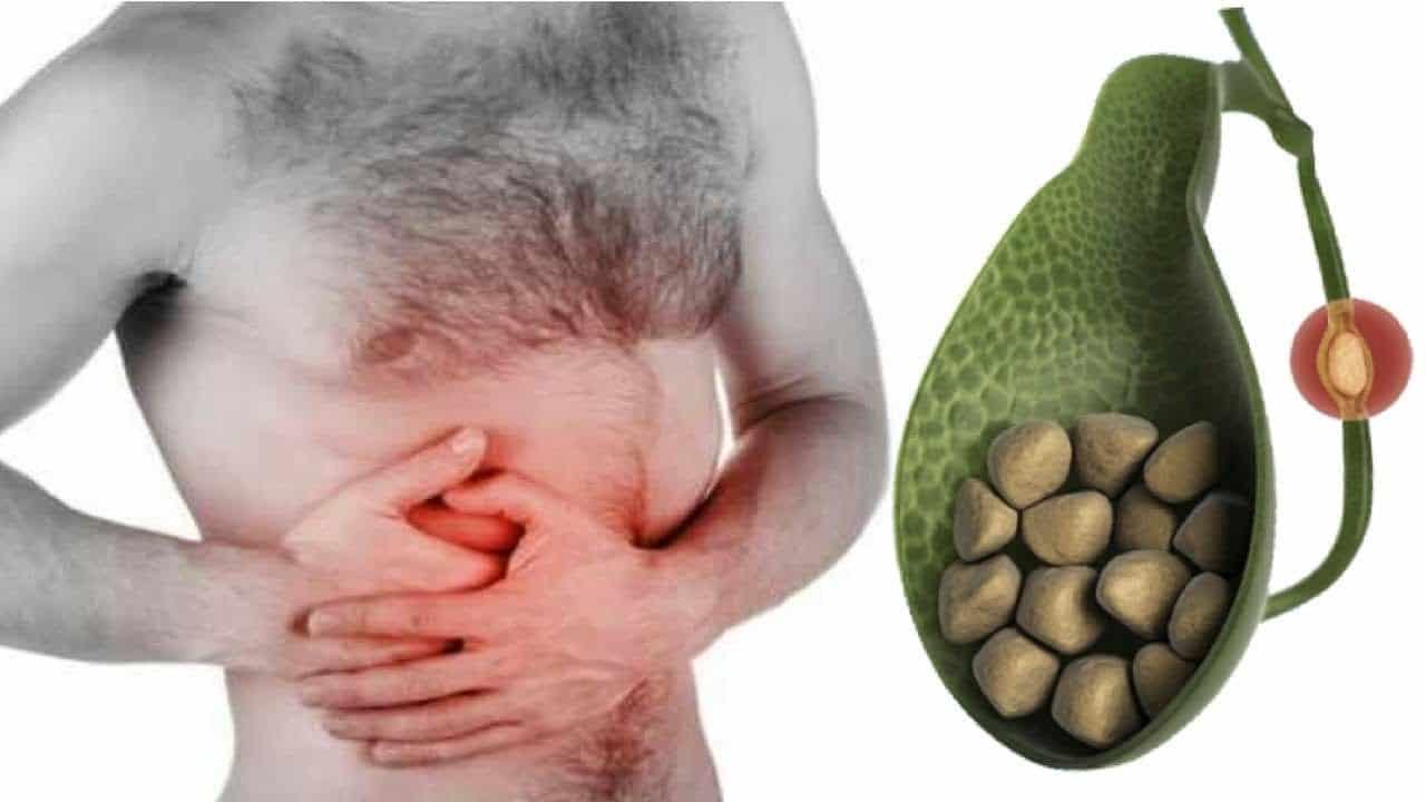 Pedra na vesícula - O que causa, riscos, sintomas, tratamento, prevenção