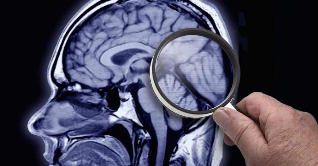 Amnésia, o que é e como saber se você tem? Tipos, causas e tratamentos