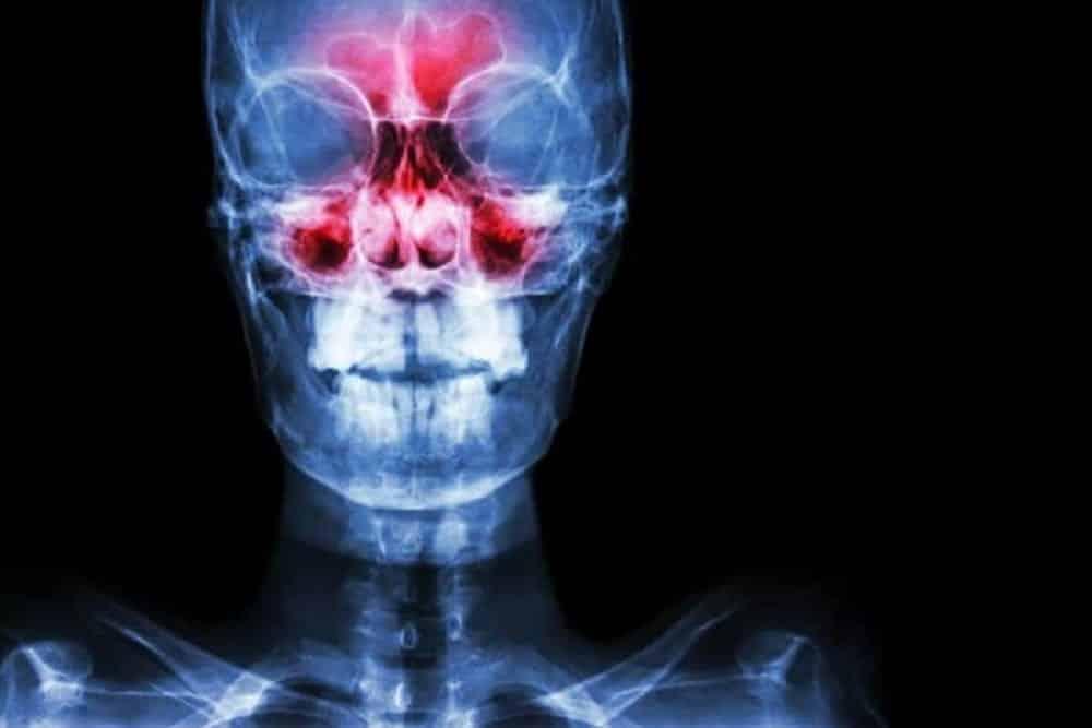 Sinusite, o que é? Sintomas, tipos, causas, tratamento, diferenças da rinite