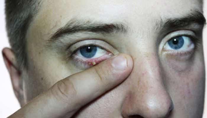 Terçol - o que é, causas, sintomas + terçol x calázio