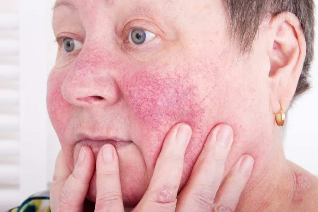 mulher de idade com lupus