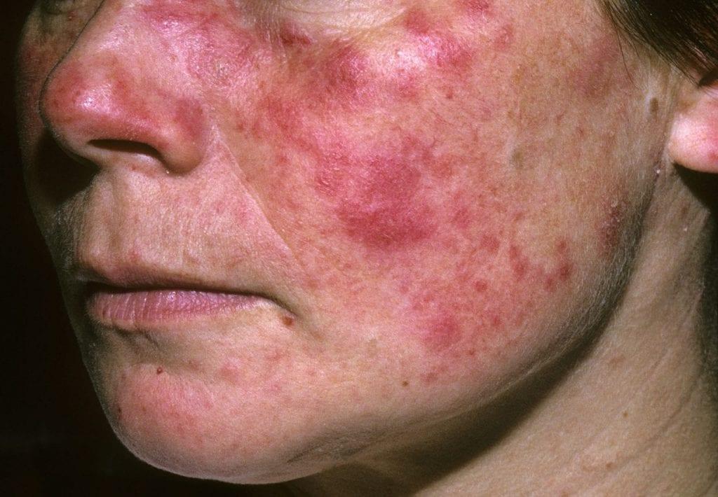 Lúpus, o que é? – Causas, sintomas, tipos e tratamento