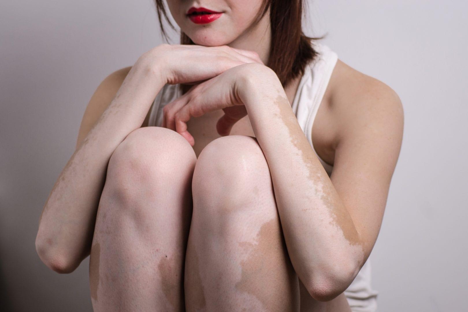 Pano branco, conheça a micose que cria manchas brancas na pele