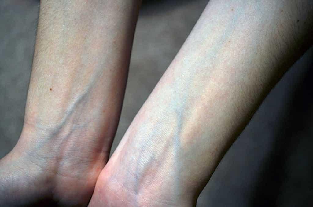 Sangue azul - descubra a origem desse termo usado na nobreza