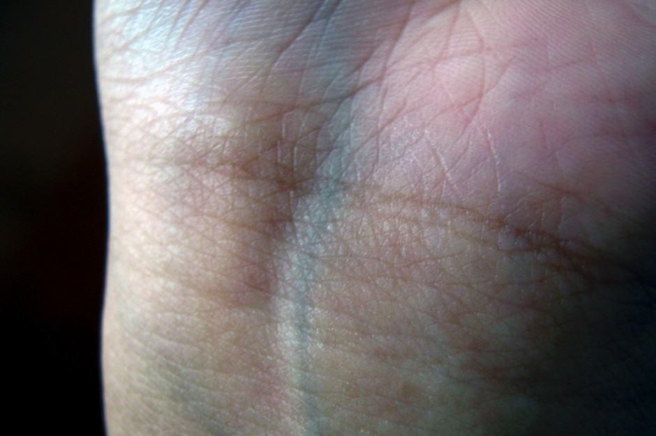 Sangue azul - Origem e significado do termo referente à nobreza