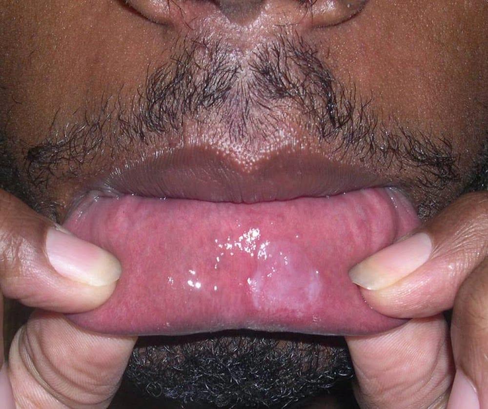 Língua branca pode ser um sinal de doença ou apenas má higiene bucal?